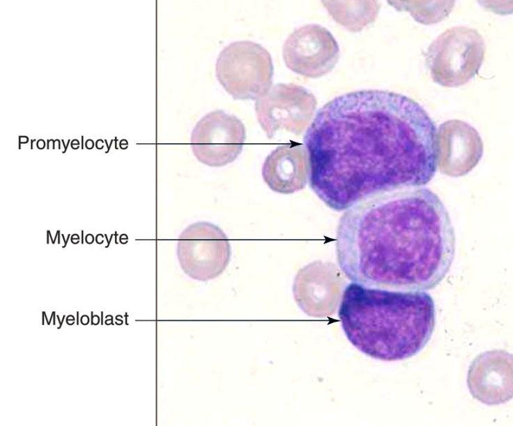 Myeloblast : Highest N/C ratio - Finest nuclear chromatin ...