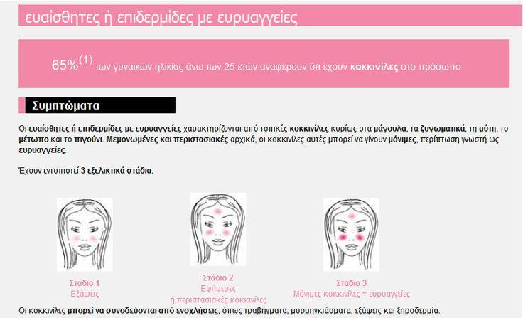 To ξέρεις ότι 2 στις 4 γυναίκες έχoυν ευρυαγγείες στο πρόσωπο και δεν γνωρίζουν ότι πρέπει να τις φροντίσουν σωστά; Ενημερώσου & Ενημέρωσε Η γνώση είναι δύναμη και περισσότερη ομορφιά και υγεία Lierac Prescription♥