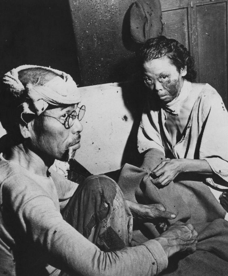 Radiation burn victims in Hiroshima. Keystone / Getty Images