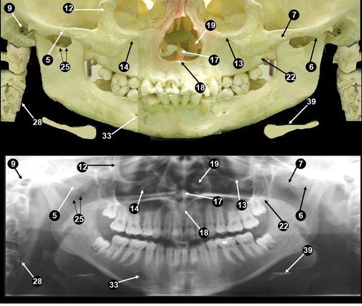 281 best Dental stuff images on Pinterest | Care quotes, Dental ...