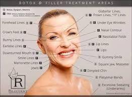 resultado de imagen de botox injection sites diagram #botoxtips  #beautytipsforface