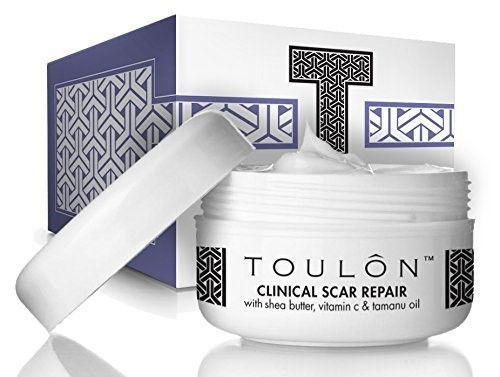 Scar Removal Cream to Best Remove Old & New Scars with Shea Butter (Yellow), Vitamin C & E and Tamanu Oil; Free Gift/No Risk http://www.wartalooza.com/treatments/salicylic-acid-treatment-for-warts