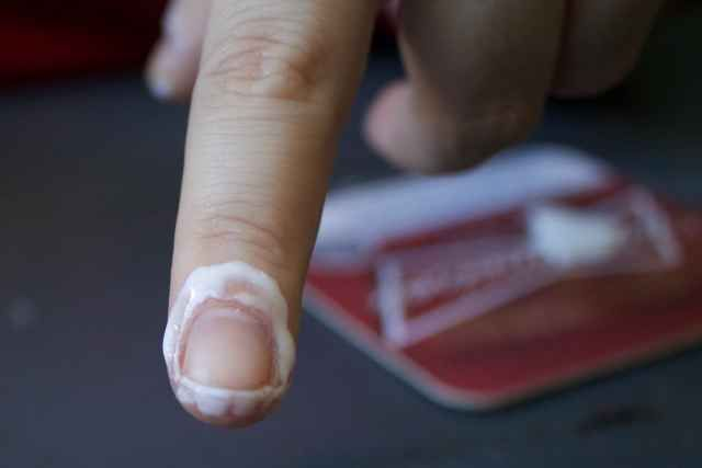 A glue-finished finger.