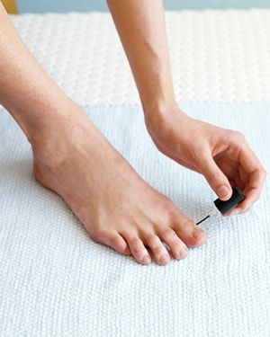 A Fungal Infection From a Pedicure  The Rx: Fungal infections produce a diffuse