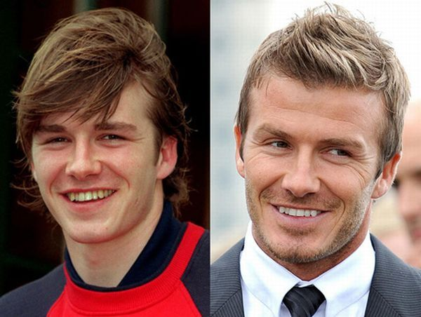 David Beckham Teeth Makeover