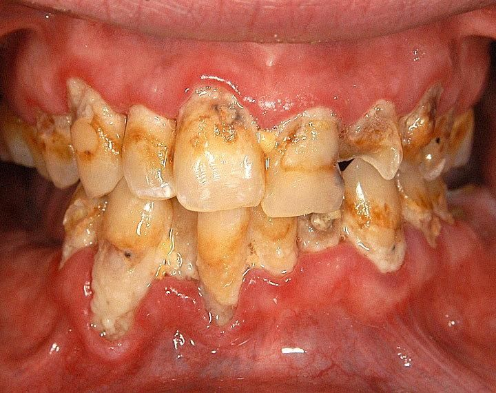 crystal meth symptoms | Meth Mouth – Pictures, Symptoms, Facts and Treatment » VERY INFORMATIVE ARTICLE !!!!