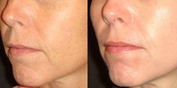 Tretinoin Cream Before And After Acne Scars