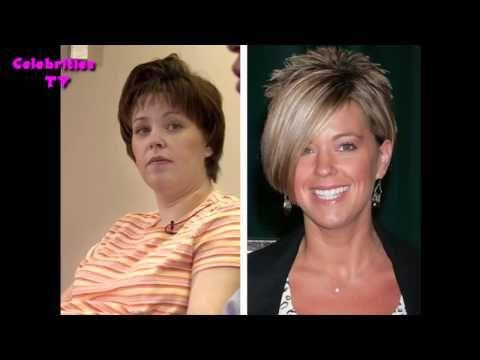 Kate Gosselin Plastic Surgical treatment - http://www.afterbeforeplasticsurgery.com/kate-gosselin-plastic-surgical-treatment/