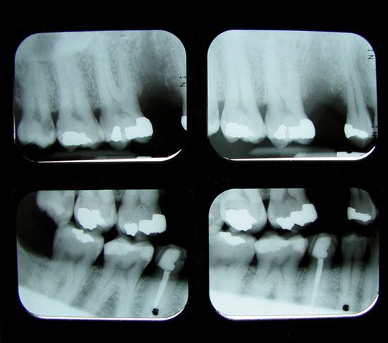 What causes tooth decay and how to prevent it.