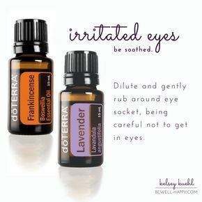 essential oils for moms -- dōTERRA essential oils for irritated, itchy, allergy eyes -- frankincense, lavender