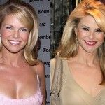 Christie Brinkley Plastic Surgery 150x150 Christie Brinkley Plastic Surgery Before and After Photos