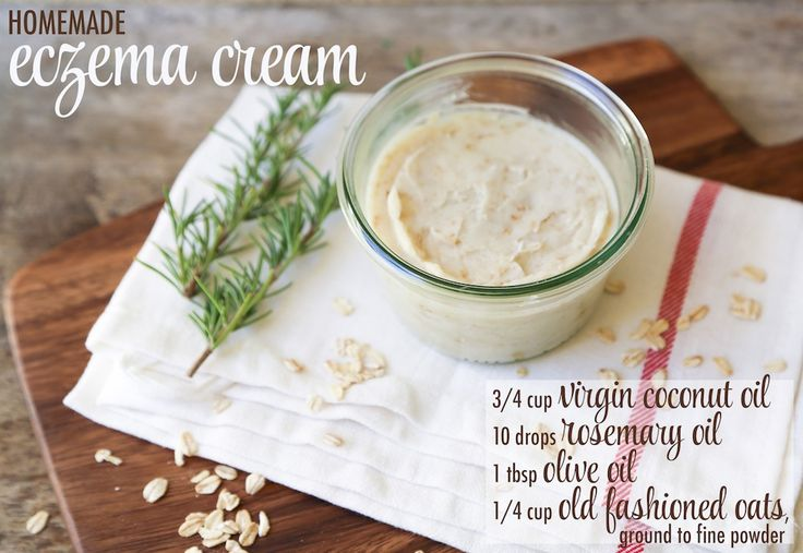 Simple Homeamde Eczema Cream DIY - although I'd use colloidal oatmeal in lieu of old fashioned oatmeal