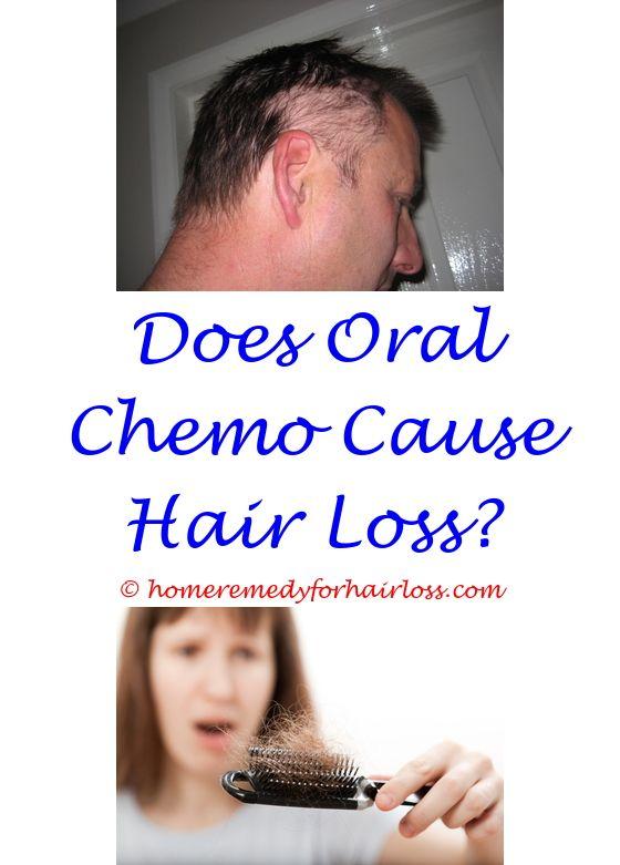 Eyebrow Hair Loss Hair Loss And Hair Loss Forum