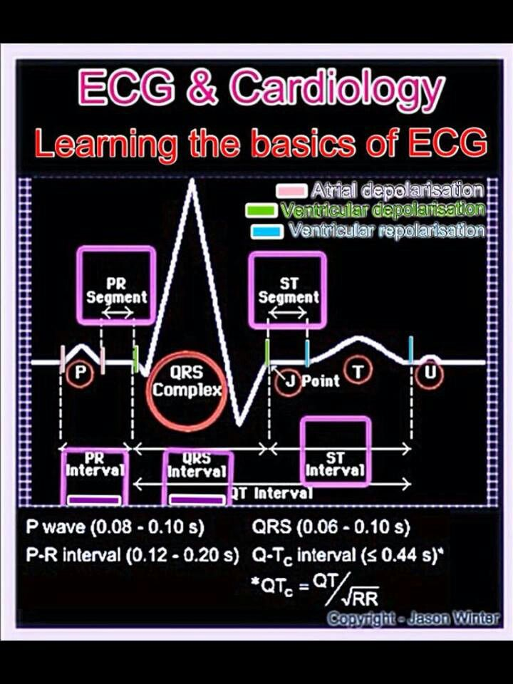 What Is an Electrocardiogram (EKG or ECG) Test: Purpose ...