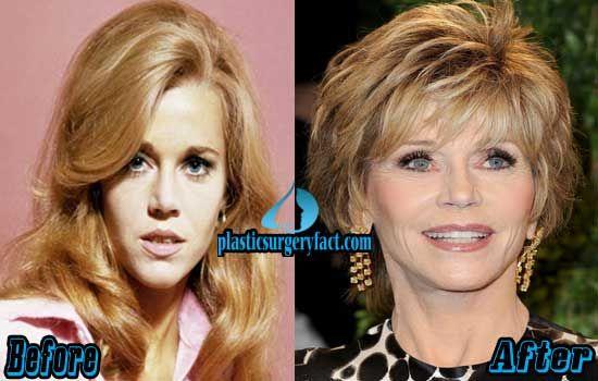 Jane Fonda Plastic Surgery Before and After   plasticsurgeryfac…