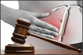 mirena lawsuit