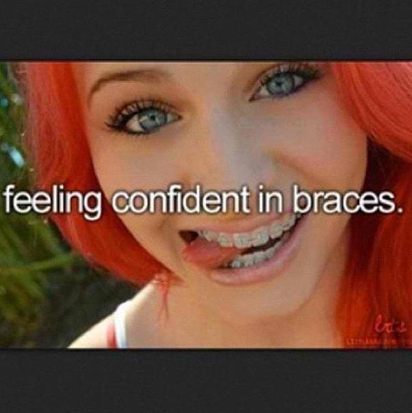 Brace braces oral sex yourself