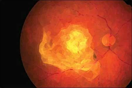 Researchers from the University of Wisconsin have found out that regular exercise can decrease the risk of an eye disease called age-related macular degeneration (AMD)