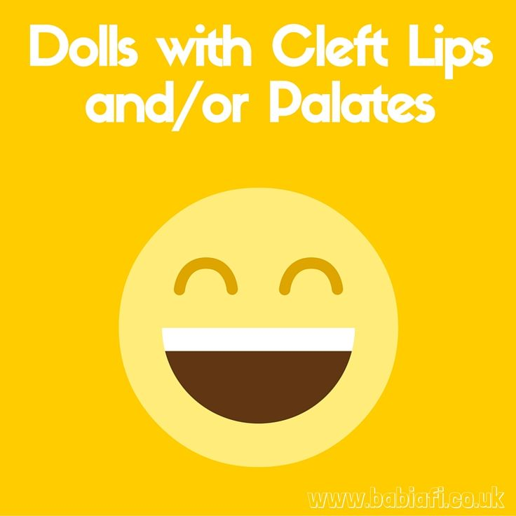 Dolls with Cleft Lips and Palates   Jessica Powell #ToyTuesday