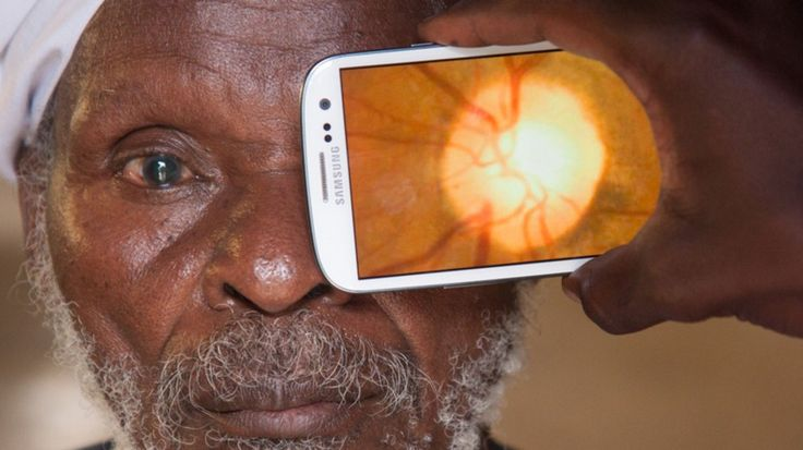 New smartphone app promises easy eye testing worldwide [The Future of Medicine: http://futuristicnews.com/tag/future-medicine/]