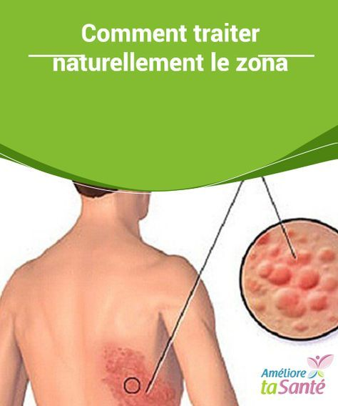 Traiter Le Bois Naturellement - 712 best images about Astuce Santé on Pinterest Natural remedies, Vapo rub and Sons