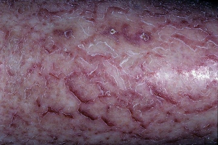 eczema pictures - Revitol Natural Eczema (Dermatitis) Cream Treatment For Baby, Children and Adults. Helps relieve eczema herpeticum, atopic dermatitis, seborrheic dermatitis, and all other types of eczema.   http://www.dermatitiseczemacream.net
