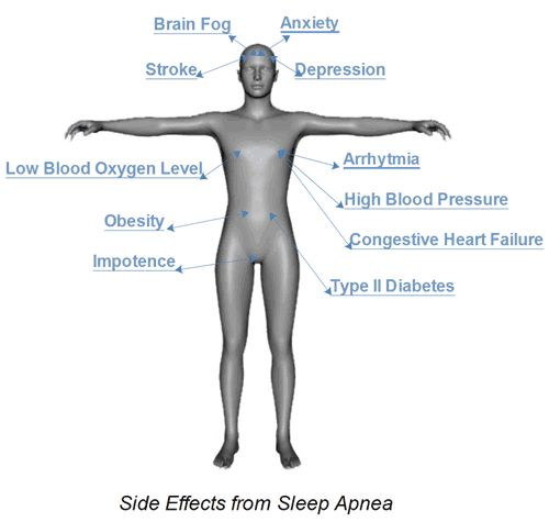Sleep Apnea Side Effects | Sleep Apnea Guide