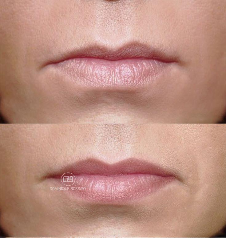 Lips - Efter Micro Color Infusion Behandling af-8973