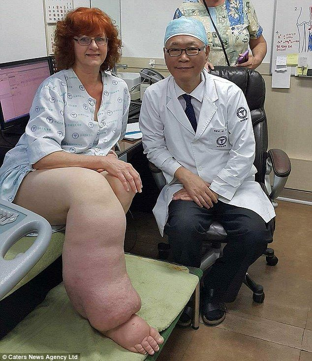 After years of barely being able to walk Ms Smith discovered Dr Young Ki Shim, a Korean lymphoedema specialist who promised to be able to treat her leg