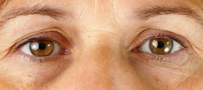Tmavé kruhy okolo očí môžu byť znakom vážnejšieho problému