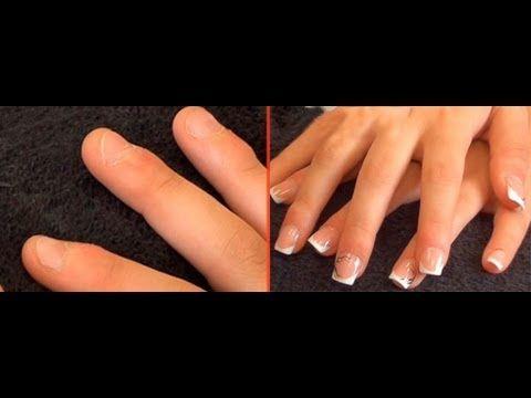 tratamiento acrilico uñas cortas