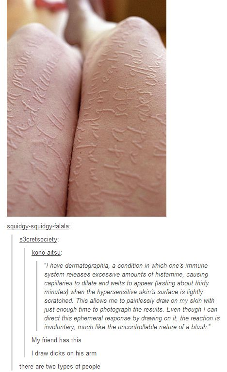 The two types of people with dermatographia. | There Are Two Types Of People In This World