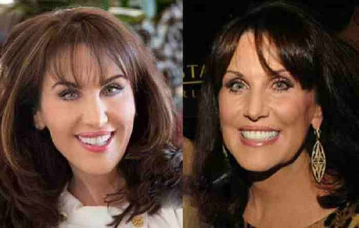 The Impact Of Robin Mcgraw Plastic Surgery