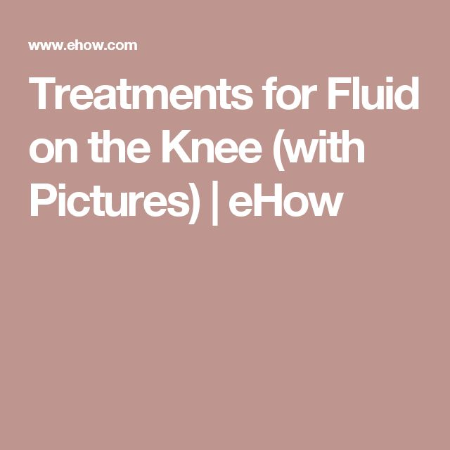 Treatments for Fluid on the Knee (with Pictures) | eHow