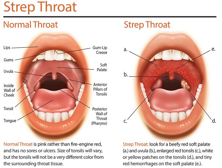 Strep throat and oral sex