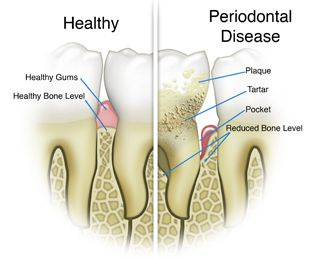Dental cleaning, checkups, and gum disease treatment is important to prevent gingivitis, or periodontal disease. Dental checkups