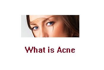 Acne vulgaris is the medical term for the most common variety of acne. This malady, so prolific that it may affect nearly everyone born with skin, consists of comedones,