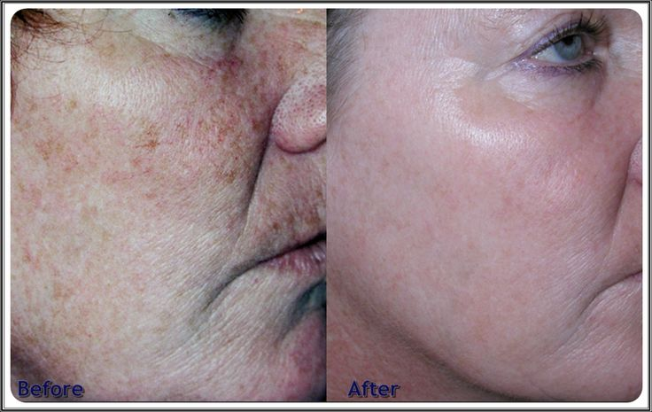 There are things you can do now to prevent aging. What about a skin laser treatment or microdermabrasion for skin tightening? Read more here: