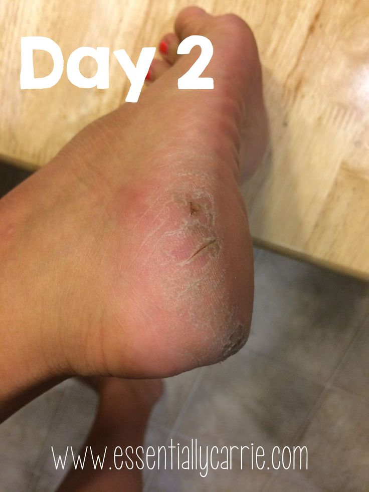 For the past couple of years, I have suffered from severely dry and cracked heels. So bad that my heels were almost black. I have tried everything from pumice stones, Ped Eggs, heel balms, lotions, and creams. I had little to no success with all of them. So frustrating and also embarrassing! I was even too embarrassed to get a pedicure - I would end up with a PILE of dead skin next to my foot that the nail technicians would have to basically grate off of my foot. It was PURE SHAME. Enter…
