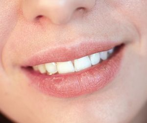 Lanolin Allergy Aggravated Chapped Lips - The People's Pharmacy®