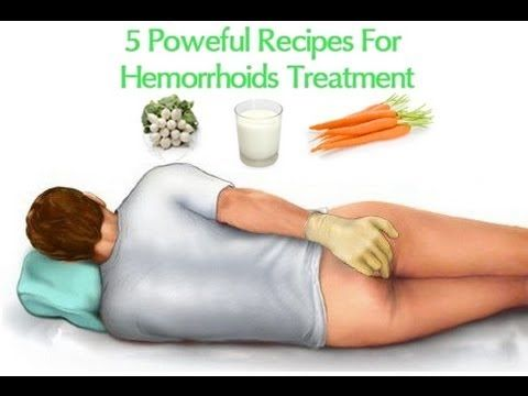 hemorrhoid wipes - Google Search