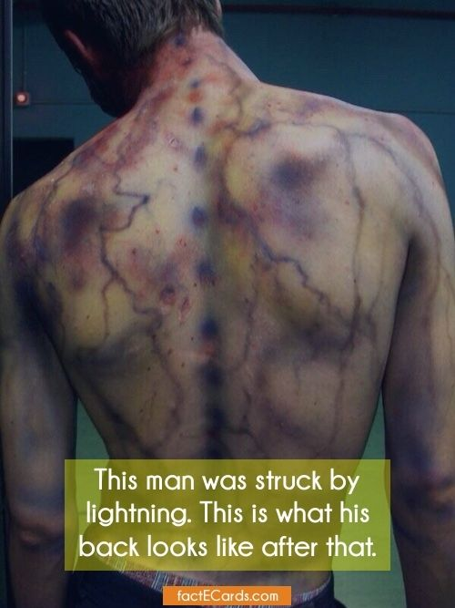 This man was struck by lightning. This is what his back looks like after that. - http://factecards.com/man-struck-lightning-what-his/