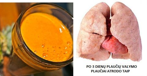 Išsivalykite savo plaučius vos per 3 dienas ir atsikratykite dusulio ir kosulio – greblys.com