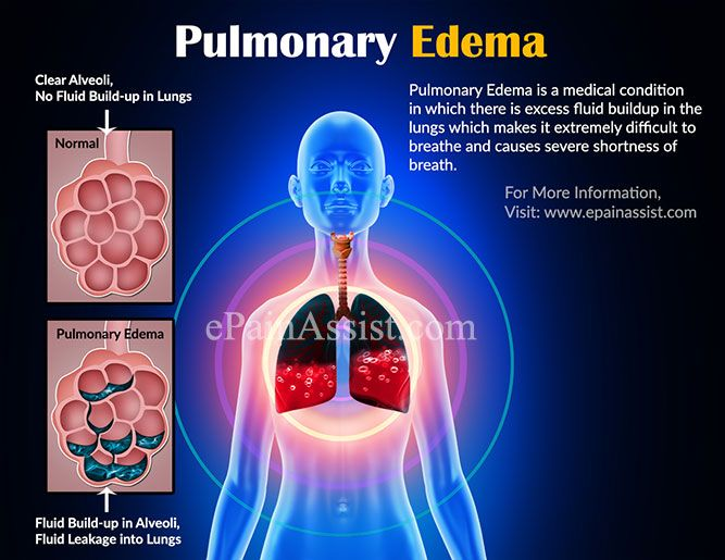 Pulmonary Edema which is caused as a result high pressure in the blood vessels of the lungs as a result of poor functioning of the heart. Know its causes, symptoms, treatment.