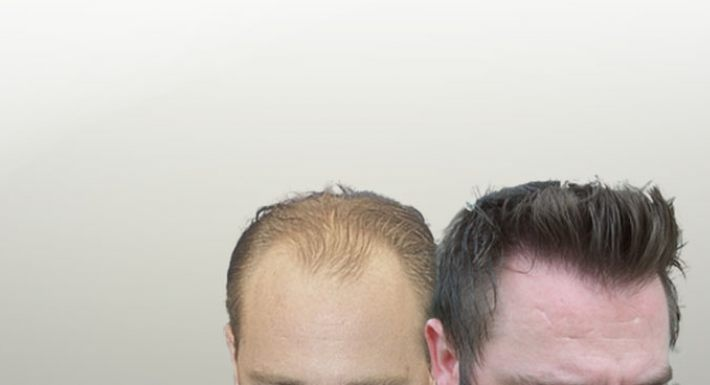 Hair Restoration Is Our Passion! Natural, Beautiful,Hairlines http://www.forhair.com/