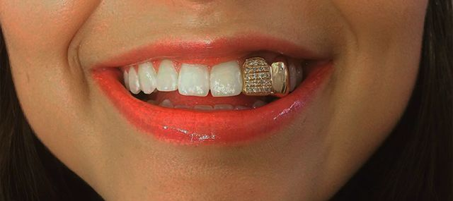 Double Tooth Iced Out Grillz