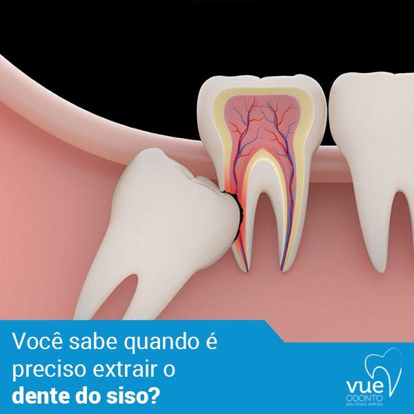 Você sabe quando é preciso extrair o dente do siso? A necessidade da cirurgia de extração do siso pode acontecer por motivos diferentes, desde o início de um tratamento ortodôntico até a posição em que o dente nasceu.  Os sinais mais comuns da necessidade de extração são devido a dor, inchaço recorrente e infecção.