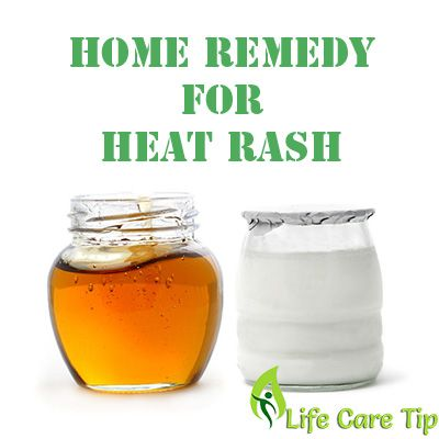 heat rash treatment
