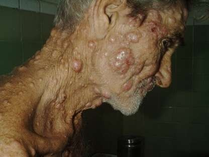 La Lepra Origen o Causas de la Lepra Enfermedad de los Pobres Buruli