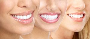 Important points you need to know about cosmetic dentistry